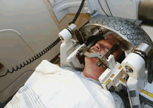Gamma Knife in use